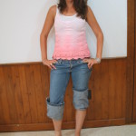 Alatheia Client shows her foot prosthesis