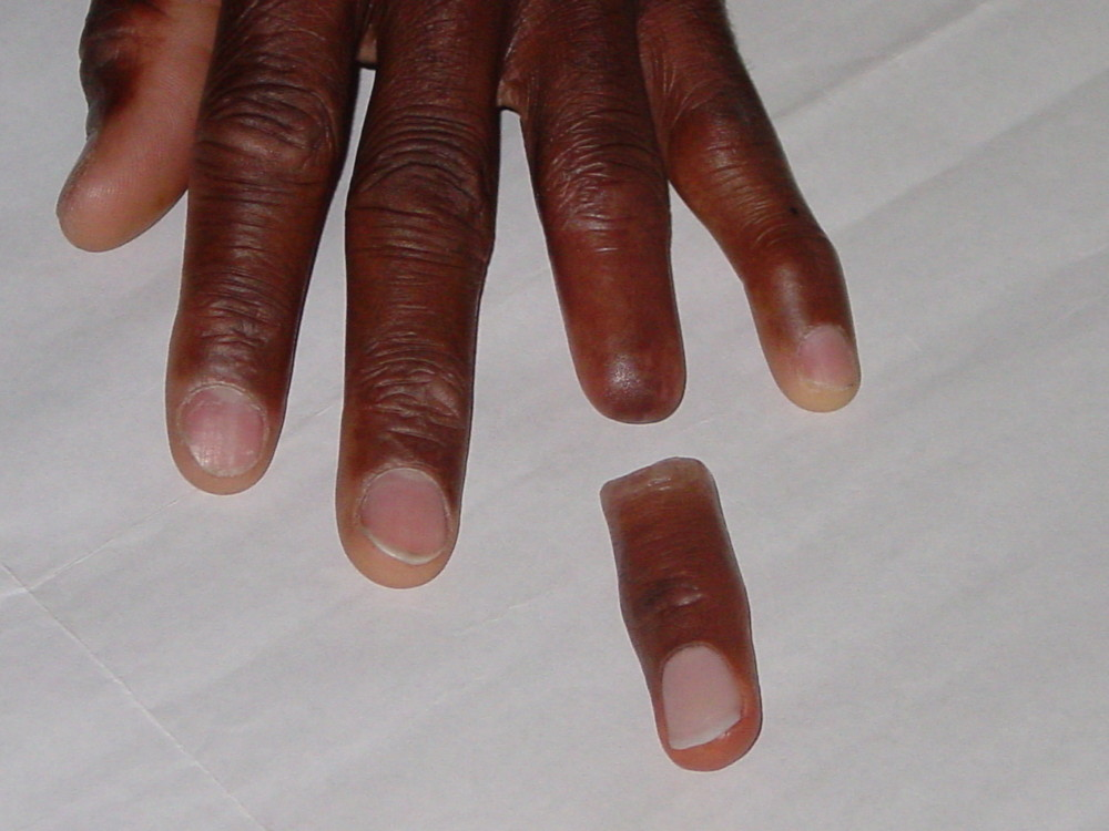 Alatheia client showing amputated finger before the prosthesis is applied
