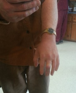 Alatheia client shows his partial hand prosthesis